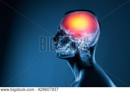 X-ray Of A Man's Head. Cerebral Stroke. Brain Damage Is Highlighted By Red Colour.