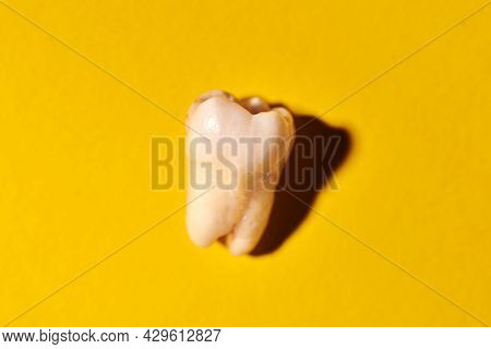 Wisdom Tooth With Tooth Decay, Yellow Background. Removed Third Molar Affected By Caries. Dental Ext