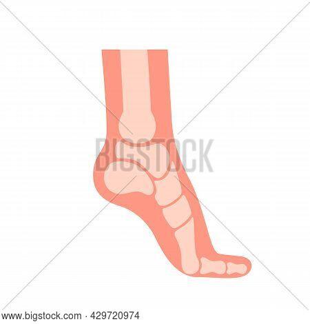 Silhouette Human Foot With Bones, Orthopedic Leg, Healthy Feet. Foot Deformation, Defect, Pathologie