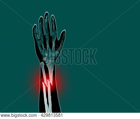 Film X-ray Forearm Simulating Photography Finding Fracture At Left Ulnar And Left Radial Diaphysis W