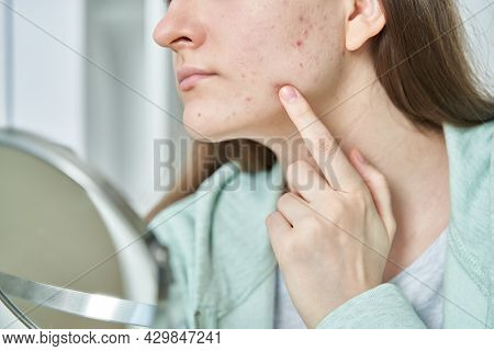 Closeup Of Female With Red Acne Spots On Chin And Cheek Looking At Mirror. Woman Sees Imperfections