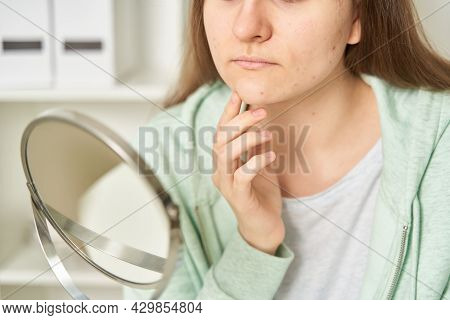 Woman Worrying About Blemishes And Imperfections During Puberty In Front Of Mirror. Teenager Checkin