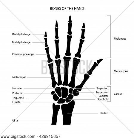 Hand Bone Anatomy Concept. Descriptions Of The Human Arm Bones. Phalanges, Metacarpus And Carpus Ana