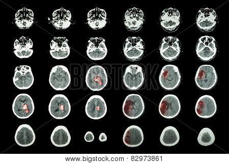 Hemorrhagic Stroke And Ischemic Stroke