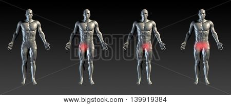 Groin Injury with Red Glow on Area Series 3D Illustration Render