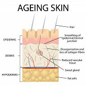 Old skin anatomy characterized by presence of age spots and wrinkles caused by loss of collagen fibers atrophy of epidermis and blood vessels. poster
