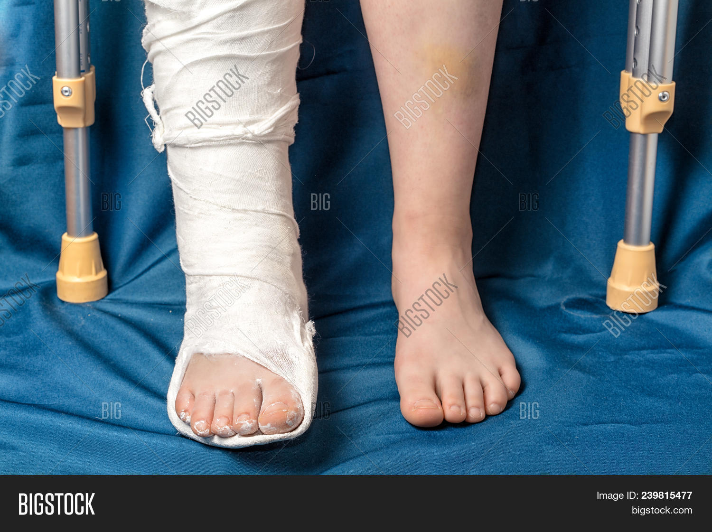 Leg Fracture Gypsum Image & Photo (Free Trial) | Bigstock