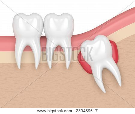 3D Render Of Teeth With Wisdom Cyst