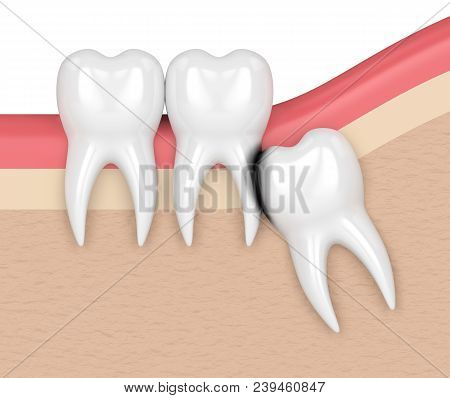 3d Render Of Wisdom With Erosion Cavity. Concept Of Different Types Of Wisdom Teeth Impactions.