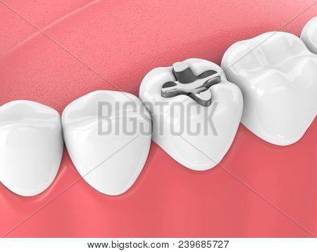 3d Render Of Teeth With Dental Inlay Filling In Gums. Dental Filling Types Concept.