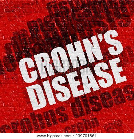 Health Concept: Crohns Disease - On The Brick Wall With Word Cloud Around . Crohns Disease On The Re