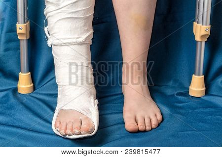 Leg Fracture In Gypsum And Crutches, Close Up Only Legs, One With Plaster And Other Leg With Bruises