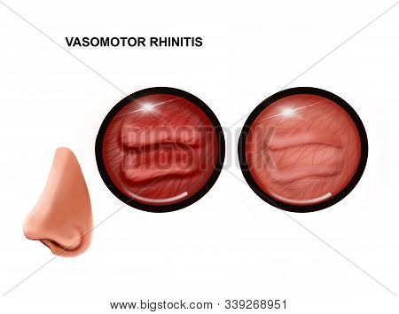 Illustration Of Vasomotor Rhinitis Of The Nasal Mucosa. Healthy And Inflamed.