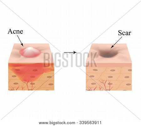 Inflamed Acne On The Skin. Inflamed Pimple. The Structure Of The Skin. Acne Scar. Infographics. Vect