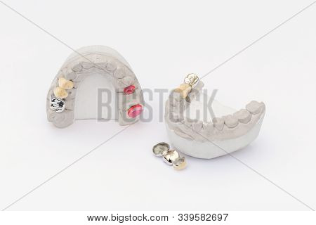 Dental Crowns Isolated On A White Background. Orthopedic Dentistry Background. Ceramic-metal Dental
