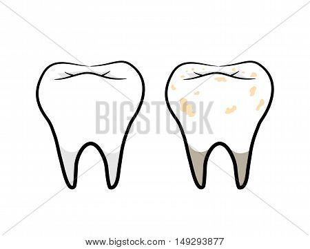 Tooth Vector Set. A hand drawn vector illustration of a clean tooth and a dirty tooth.