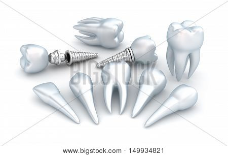 Teeth and implant Dental concept over white