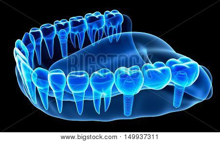 X-ray view of denture with implant, 3D render