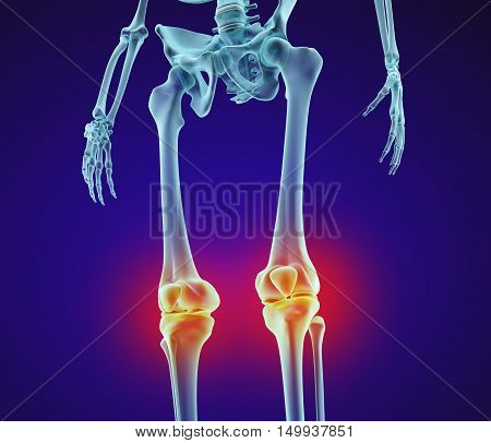 Knee problem. Xray view. Medically accurate 3D illustration