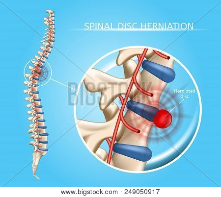 Spinal Disk Herniation Vector Medical Scheme With Vertebral Column And Herniated Disc Anatomical Ill