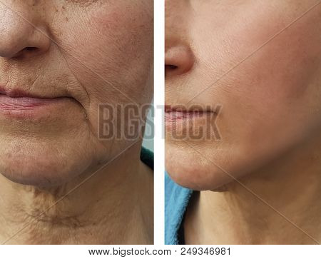 Wrinkles Woman Face Before And After Correction, Therapy