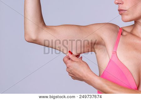 Close up of a calm young adult female pinching and stretching skin on tricep portion of bent arm poster