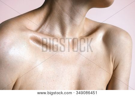 Female Graceful Forms. Neck Shoulders And Collarbones Of A Beautiful Woman Age 35. Beauty And Skin C