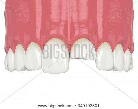 3d Render Of Upper Jaw With Broken Incisor Tooth Over White Background