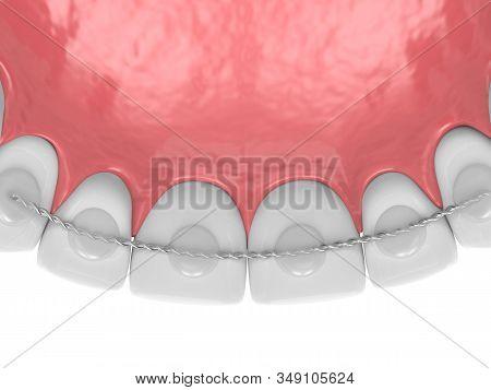 3d Render Of Dental Bonded Retainer On Upper Jaw Over White Background