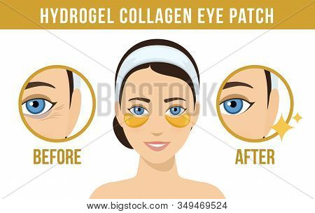 Before And After Hydrogel Eye Patches. Cosmetic Collagen Eye Patches. Golden Eye Patches For Beauty