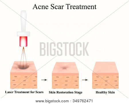 Acne Scars. Laser Scar Atrophic Treatment. The Anatomical Structure Of The Skin With Acne. Illustrat