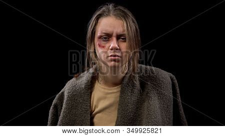 Depressed Wounded Female Looking Camera, Abuse Hopelessness Psychological Trauma