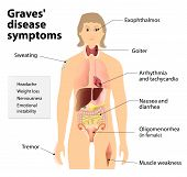 Graves' disease or toxic diffuse goiter or Flajani-Basedow-Graves disease. Symptoms and signs of Graves' disease. Human silhouette with highlighted internal organs poster