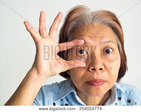 Retirement Elderly Old Ages Asia Women Have Eyes Pain Cataract Lasik Eyes Surgery Treatment Flu Feve