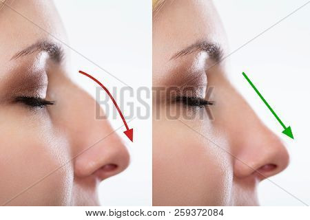 Woman's Nose Before And After Plastic Surgery