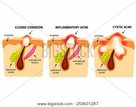 Types Of Acne. Closed Comedones, Inflammatory Acne, Cystic Acne. The Structure Of The Skin. Infograp