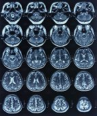 x-ray image of patient brain by computed tomography, mri for medical diagnosis. poster