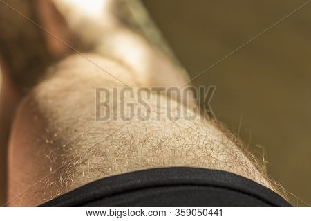 Hairy Male Knees (legs) Close-up. Male Depilation Concept