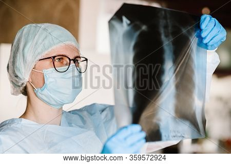 Doctor Specialist Pulmonary Medicine Holding Radiological, Chest X-ray Film For Medical Diagnosis On