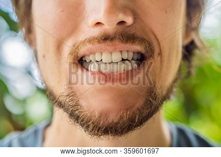 Man Placing A Bite Plate In His Mouth To Protect His Teeth At Night From Grinding Caused By Bruxism