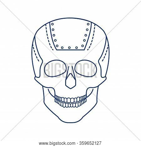 Bio Artificial Plate On The Skull Black Line Icon. Special Material In The Human Skull, Established