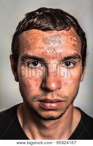 Sunburn Skin On Male Face