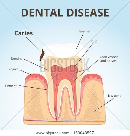 dental disease - caries, the stage tooth decay