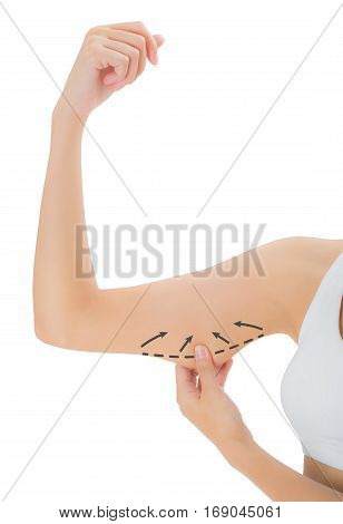 woman grabbing skin on her upper arm with the drawing black arrows Lose weight and liposuction cellulite removal concept Isolated on white background.