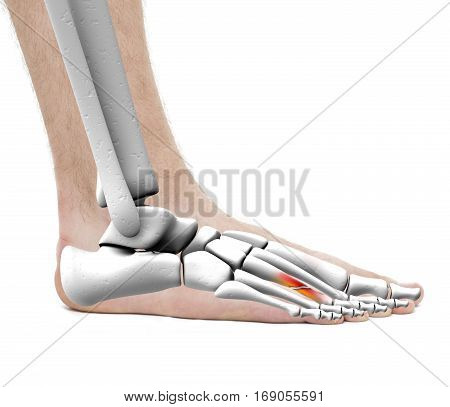 Foot Fracture Metatarsal Bone - Anatomy Male - Studio Photo Isolated On White