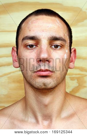 Young Man With Chronic Infected Candida Albicans