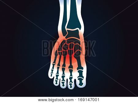 Human foot bone have a red signal. This illustration about foot pain.