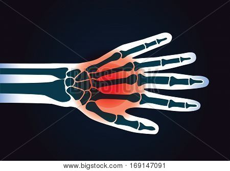 Human hand bone have a red signal. This illustration about foot pain.