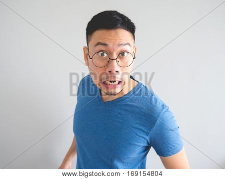 Funny Face Of Shocked Asian Man.