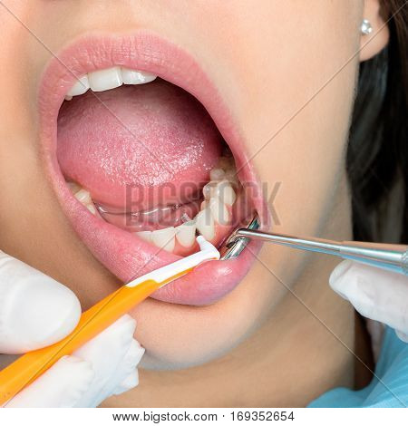 Macro close up of hands doing interdental cleaning on human teeth.Human mouth wide open with interdental brush between teeth.